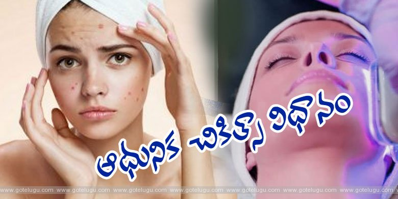 Acne - Modern Therapy.!