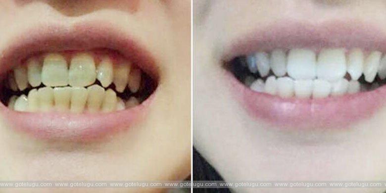 Tooth-hygiene
