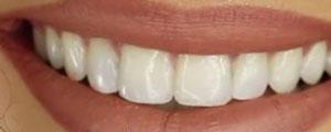 Do you need teeth (teeth)?